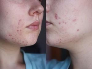 Les causes de l'acné - Club des esthéticiennes