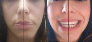 Assymétrie du visage