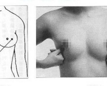 Auto massage autour des seins