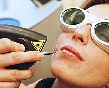 électro-coagulation de la couperose