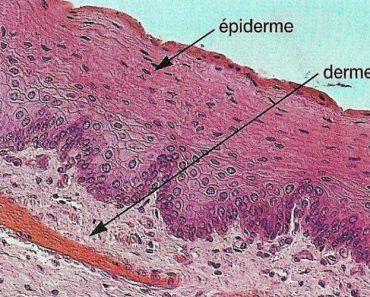 Épiderme gras