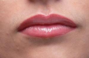Lèvres assymétriques