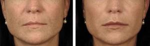 Lèvres trop petites