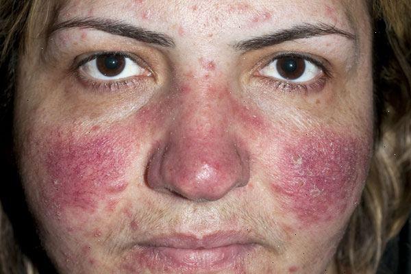 Rougeurs du visage causes